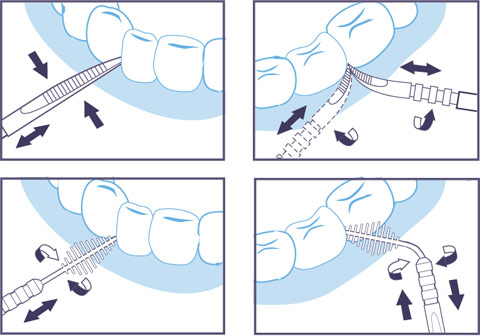 Pulisci gli spazi tra i denti